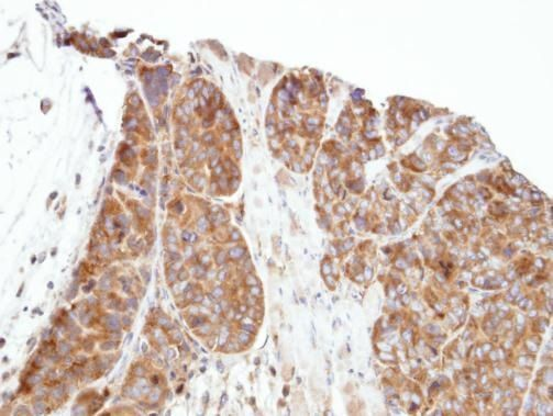 PRPSAP1 Antibody (PA5-21838) in Immunohistochemistry (Paraffin)