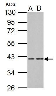 PKA alpha Antibody (PA5-21842) in Western Blot