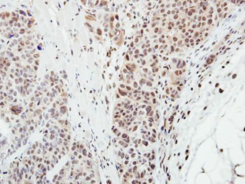 MPP3 Antibody (PA5-21844) in Immunohistochemistry (Paraffin)