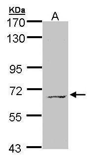 MPP3 Antibody (PA5-21844) in Western Blot