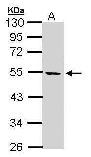 STK25 Antibody (PA5-21845) in Western Blot