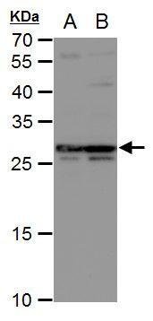 DCK Antibody (PA5-21846) in Western Blot