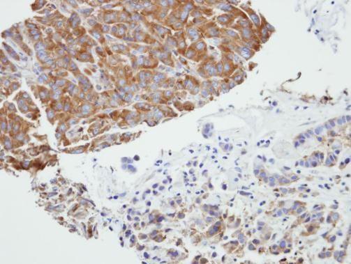 PRPSAP2 Antibody (PA5-21847) in Immunohistochemistry (Paraffin)