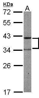 PRPSAP2 Antibody (PA5-21847) in Western Blot