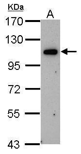 ORP6 Antibody (PA5-21861) in Western Blot