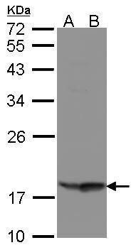 RARRES3 Antibody (PA5-21863)