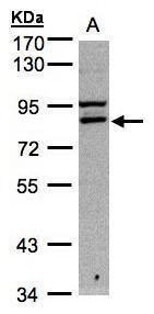 FASTKD1 Antibody (PA5-21872) in Western Blot