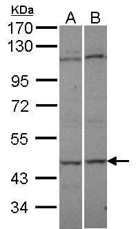 Adenylate Kinase 8 Antibody (PA5-21873) in Western Blot
