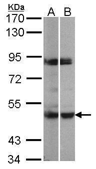 PRAK Antibody (PA5-21880) in Western Blot