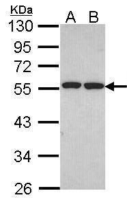 ETEA Antibody (PA5-21887) in Western Blot