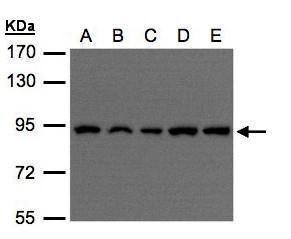 VPS35 Antibody (PA5-21898) in Western Blot