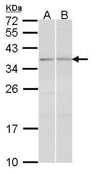 TGIF2 Antibody (PA5-21900) in Western Blot