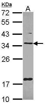 TMX Antibody (PA5-21902) in Western Blot