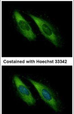 Munc13-4 Antibody (PA5-21905)