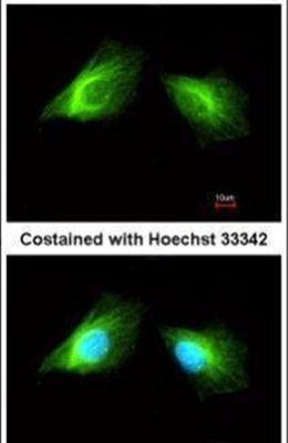 HRH2 Antibody (PA5-21907)