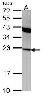Interferon alpha-2 Antibody (PA5-21926) in Western Blot