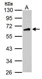 CaMKK beta Antibody (PA5-21929) in Western Blot