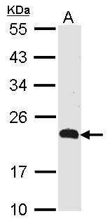 CMTM5 Antibody (PA5-21937)