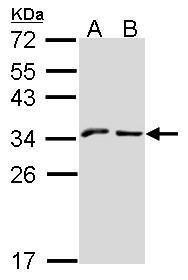 NKG2A Antibody (PA5-21949) in Western Blot