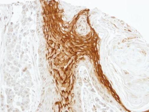 RAMP2 Antibody (PA5-21953)
