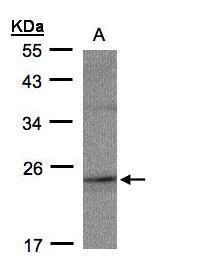 RAP2C Antibody (PA5-21960) in Western Blot