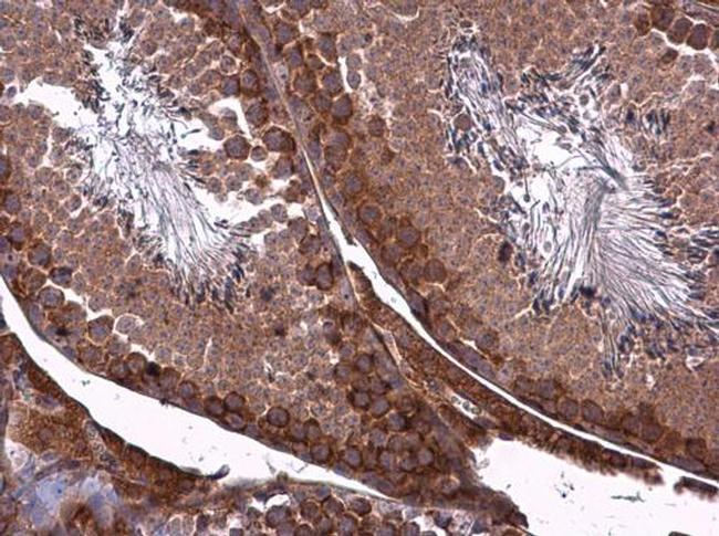 ZO-1 Antibody (PA5-21965)