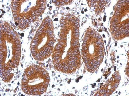 TSPAN1 Antibody (PA5-21973)