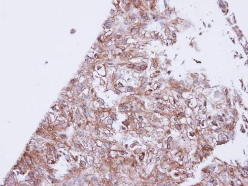 KCNJ3 Antibody (PA5-21975) in Immunohistochemistry (Paraffin)