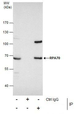 RPA70 Antibody (PA5-21976) in Immunoprecipitation