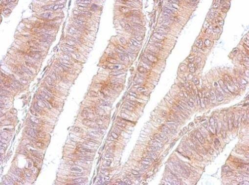 B3GNT3 Antibody (PA5-21988) in Immunohistochemistry (Paraffin)