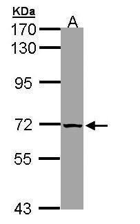SLC25A13 Antibody (PA5-21991) in Western Blot