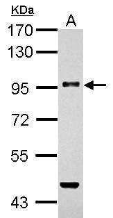 TGFBR3 Antibody (PA5-21994) in Western Blot
