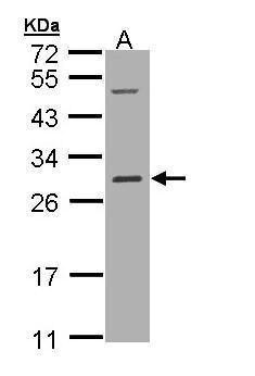 RALB Antibody (PA5-21997) in Western Blot