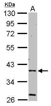 AMPK gamma-2 Antibody (PA5-21998) in Western Blot