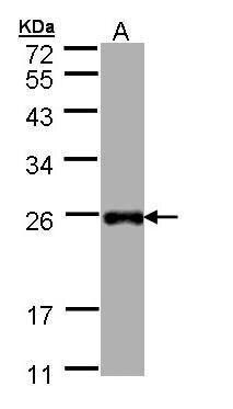 LITAF Antibody (PA5-22004) in Western Blot