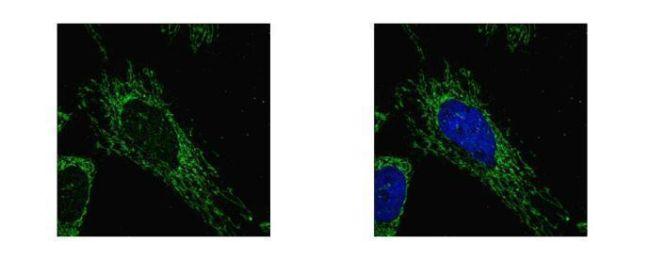 SUCLG1 Antibody (PA5-22006)