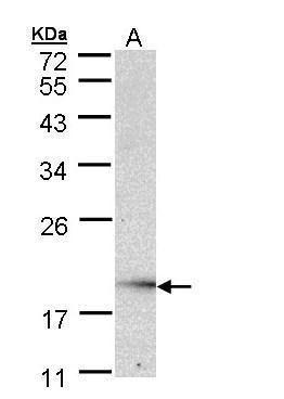 UBE2G2 Antibody (PA5-22007) in Western Blot