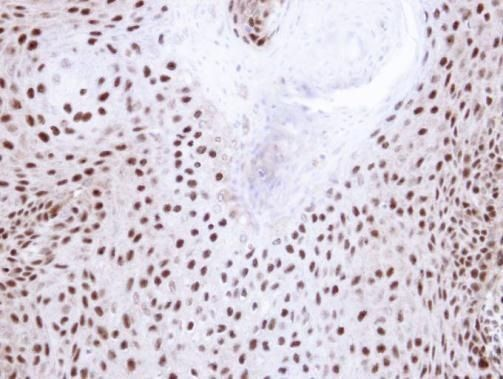 NHP2L1 Antibody (PA5-22010) in Immunohistochemistry (Paraffin)