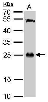 GSTT1 Antibody (PA5-22011) in Western Blot
