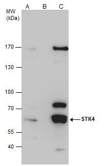 MST1 Antibody (PA5-22015) in Immunoprecipitation