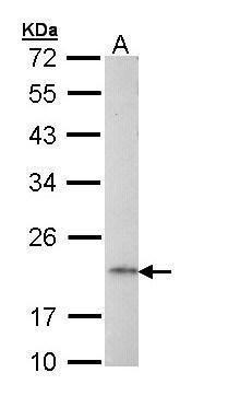 AP1S2 Antibody (PA5-22018) in Western Blot