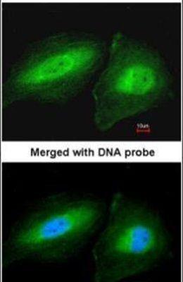 CCDC83 Antibody (PA5-22025) in Immunofluorescence