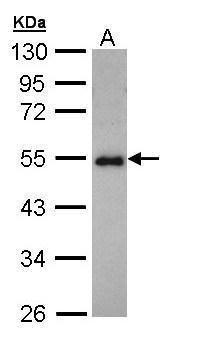 CCDC83 Antibody (PA5-22025) in Western Blot