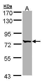 BBS10 Antibody (PA5-22028) in Western Blot