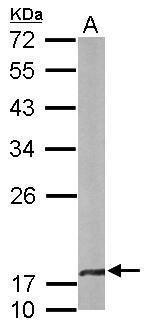 CRYBA4 Antibody (PA5-22032) in Western Blot