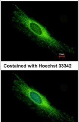 PEX26 Antibody (PA5-22033) in Immunofluorescence