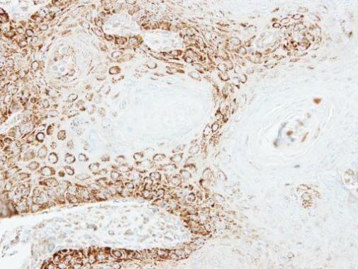 PEX26 Antibody (PA5-22033) in Immunohistochemistry (Paraffin)