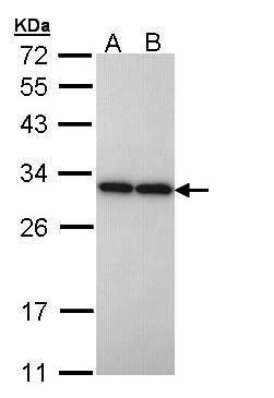 PGAM2 Antibody (PA5-22038) in Western Blot