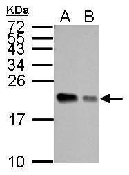APRT Antibody (PA5-22040) in Western Blot