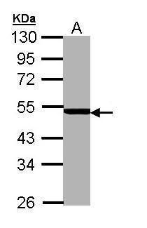 PSMC3 Antibody (PA5-22041) in Western Blot